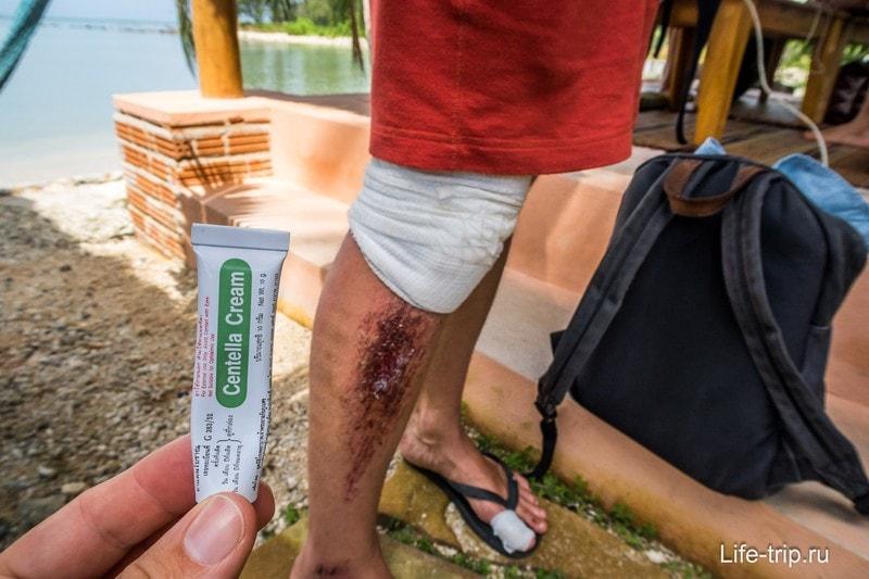 Мазь для ран можно купить в тайских аптеках